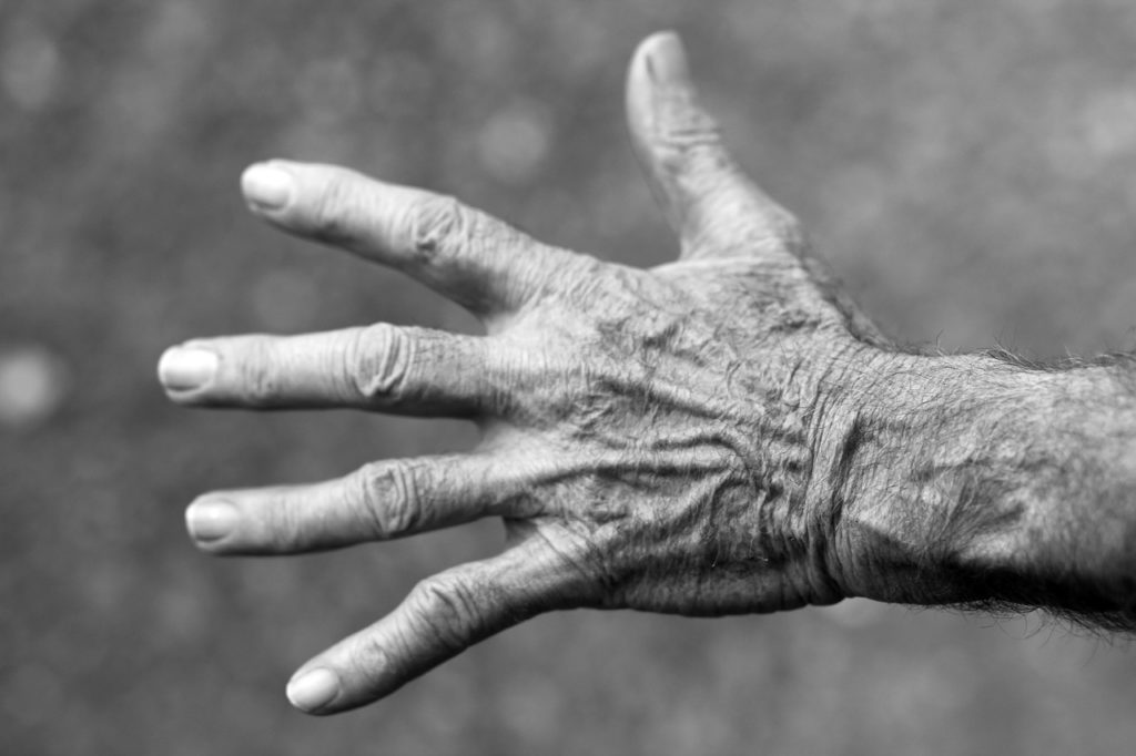 artritis empeora humedades